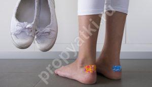 Мозоль на пятке: как быстро вылечить сухие и мокрые наросты в домашних условиях, основные причины появления, мази, кремы, пластыри, подручные средства для снятия воспаления